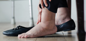 Varicose Veins: What You Should Know