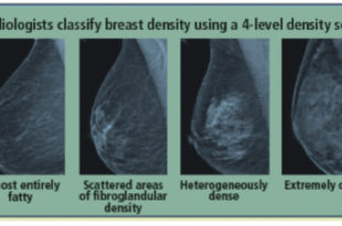 What you should know about dense breast