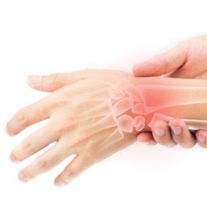 Wrist Fractures Demystified!