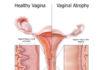 An Advanced Treatment Option for Women's Intimacy & Wellness
