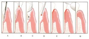 LASER Gum Disease Treatment – The alternative to Surgery