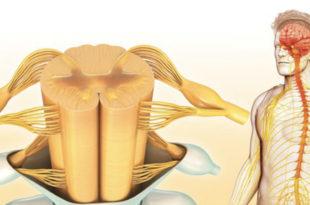 Lumbar Radiculopathy (Nerve Root Compression)