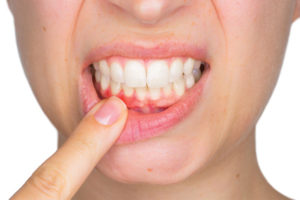 Periodontal Disease and Bone Loss:  Bone Grafting and Implants Offer Multiple Benefits
