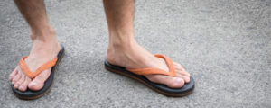 Proper Footwear & Why Diabetics Should Never Wear Sandals or Flip Flops