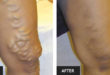 What Do Varicose Veins, High Blood Pressure, High Cholesterol and Diabetes Have in Common?