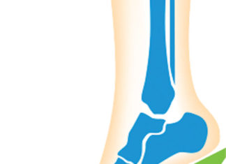 A Groundbreaking Procedure for Painful The Arthritic Big Toe Joint (Bunion)