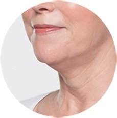 Are You Noticing More Fullness Under Your Chin?