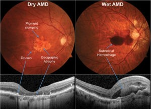 Diagnosing Macular Degeneration Early is Critical to Saving Sight
