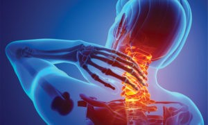 Did You Know the Pain in Your Neck Can be Alleviated with Physical Therapy?