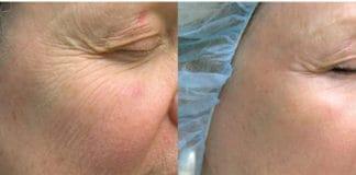 Get a Jump Start on Your Facial Aesthetics & Body Goals