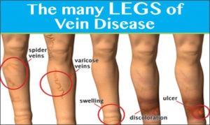 VEINS 101: 50 Million Americans Have  Treatable Vein Disease!
