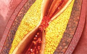 Coronary Artery Disease: Are You Ignoring the Symptoms