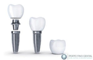 Implant Dentistry can give you a new smile