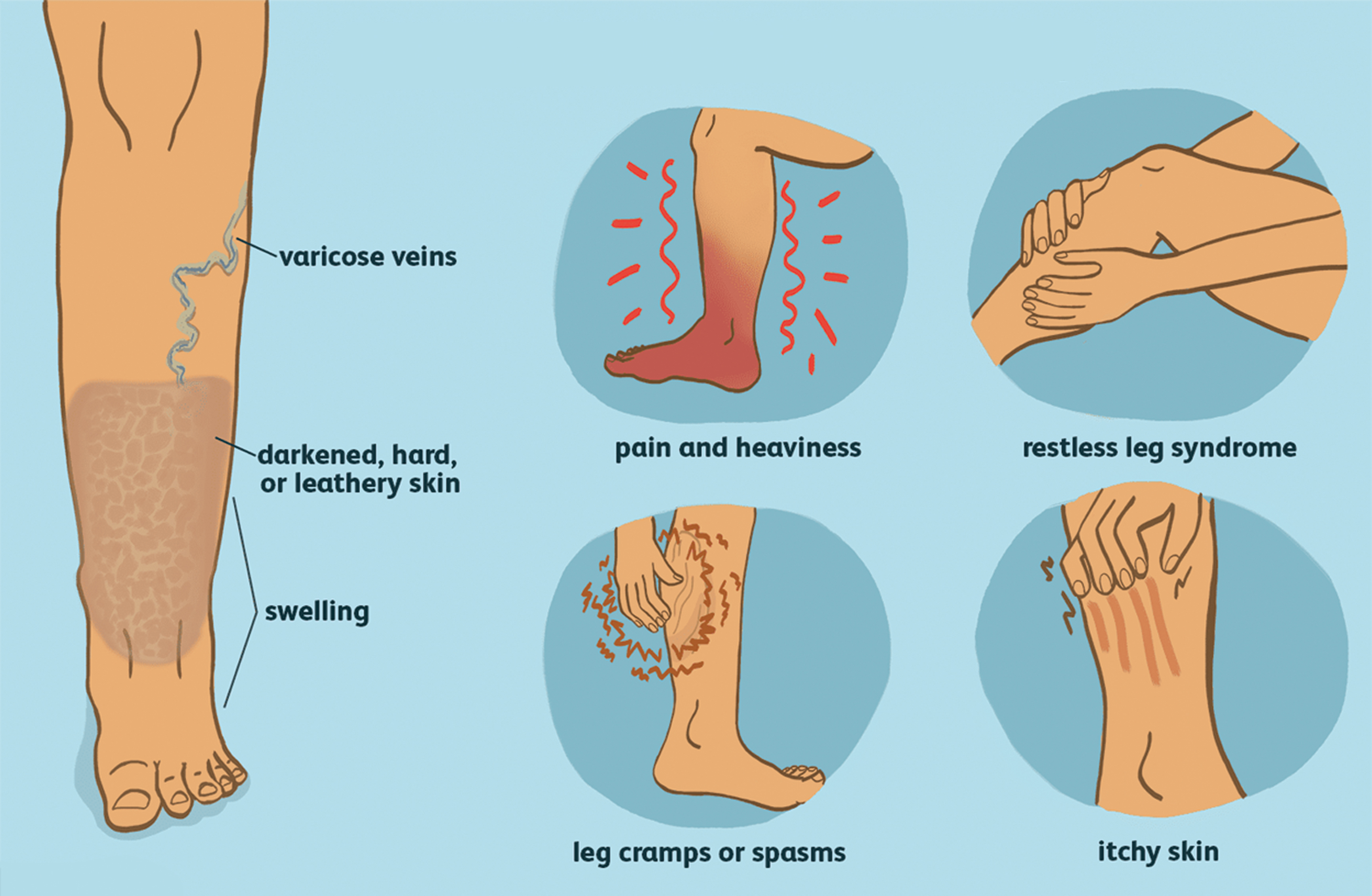 CAN TREATING YOUR VEINS  be the Answer to your Pain