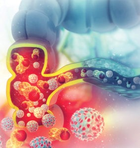 COLORECTAL CANCER WITH REGULAR SCREENINGS