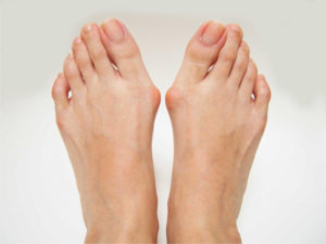 Don't Ignore Painful, Swollen Bunions
