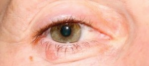 Detecting And Preventing Eyelid Cancer