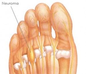 What is a Neuroma of the Foot