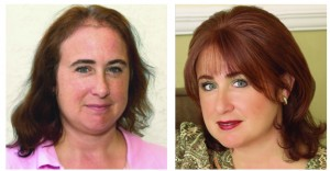 Hair Loss Caused by Thyroid Issues