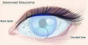 Risks of Glaucoma