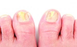 embarrassing toenail fungus