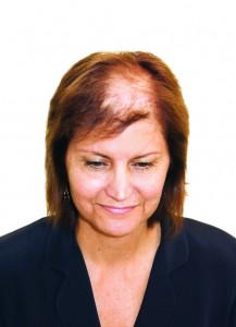About Lupus Hair Loss