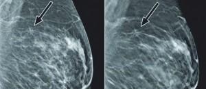A New Era in Breast Imaging
