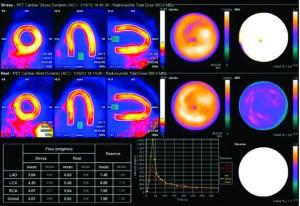 Cardiac PET Advancing Non-Invasive Heart Disease Diagnosis