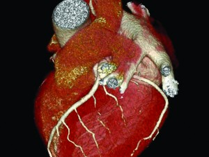 Ultrafast CT Screening of the Heart