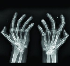 Arthritis: What is it, and what can I do for it