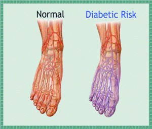 Neuropathy and the Diabetic Patient