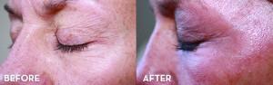 Frantz Cosmetic Center Offers New Laser Treatment for Skin Rejuvenation