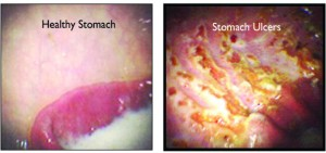 Stomach Ulcer Causes, Treatment & Prevention