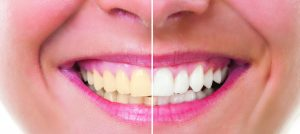 Should You Whiten Your Teeth?